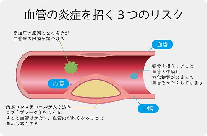 血管の炎症と衰えていく3つの原因